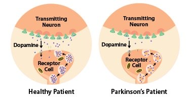 Brain By Parkinson Disease